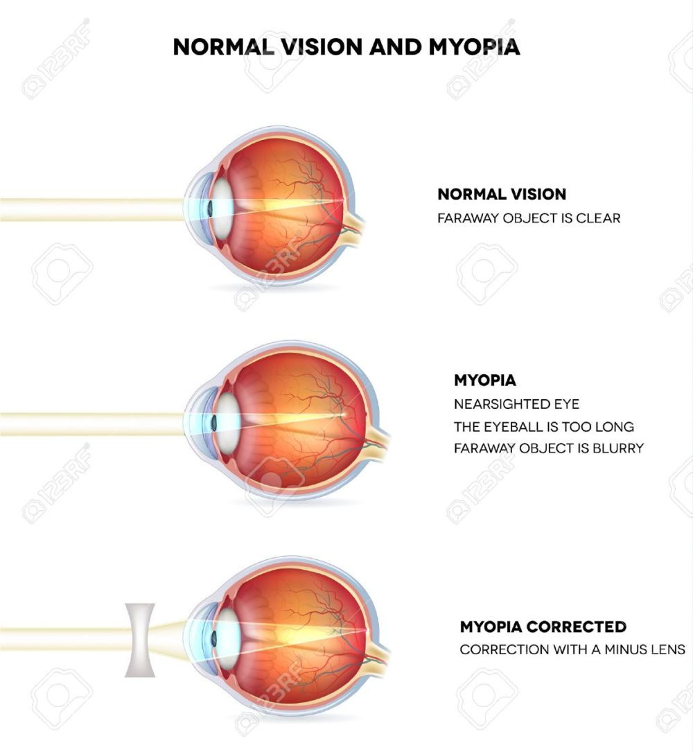 medium resolution of myopia and normal vision myopia is being shortsighted myopia corrected with minus lens