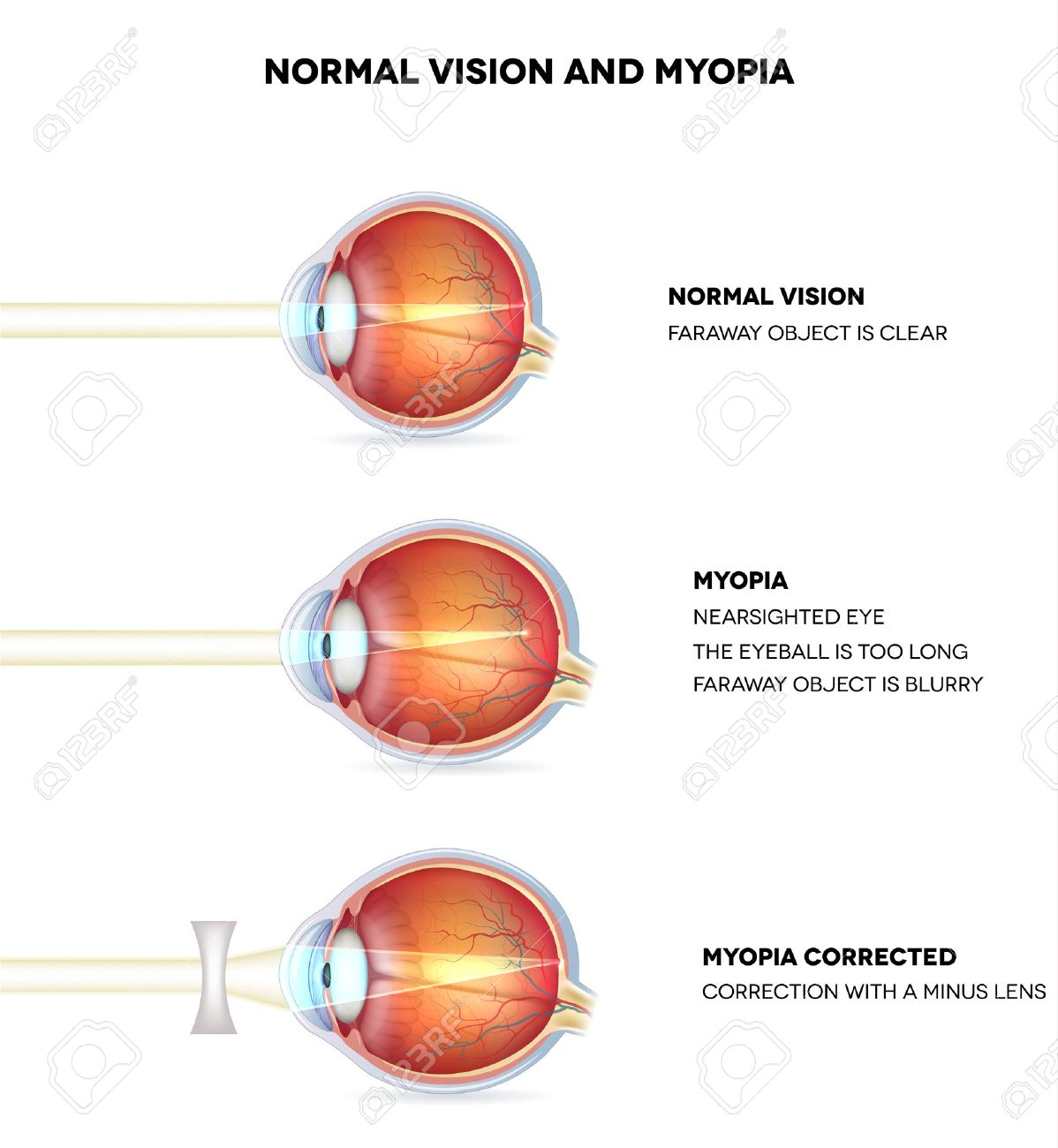 hight resolution of myopia and normal vision myopia is being shortsighted myopia corrected with minus lens
