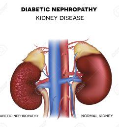 diabetic nephropathy kidney disease caused by diabetes stock vector 47999985 [ 1300 x 1194 Pixel ]