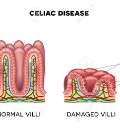 celiac disease affected small intestine villi on a white background healthy villi and unhealthy villi [ 1300 x 946 Pixel ]