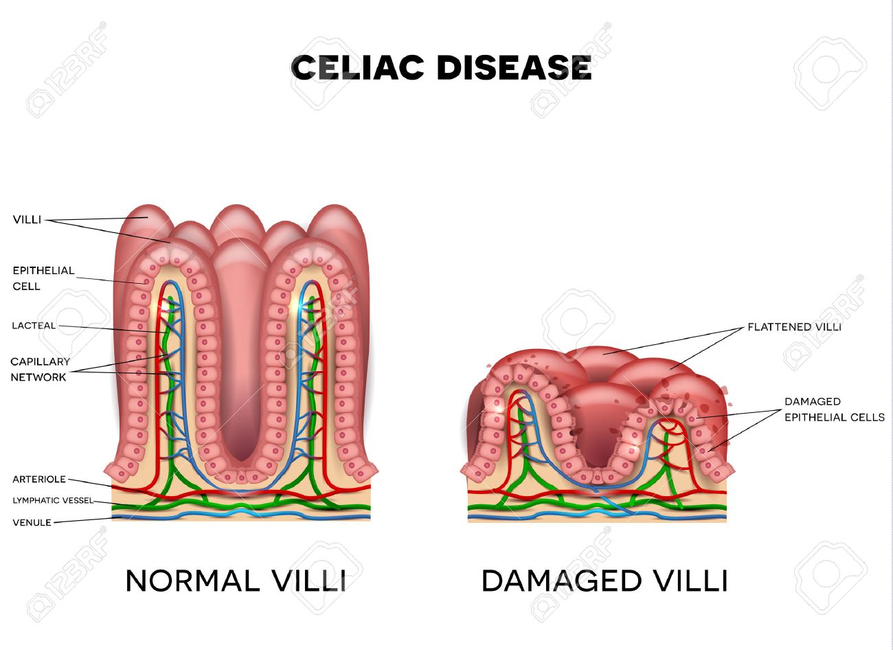 hight resolution of celiac disease affected small intestine villi on a white background healthy villi and unhealthy villi