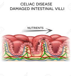 celiac disease affected small intestine villi damaged cells by body s reaction to gluten intestinal [ 1300 x 1187 Pixel ]