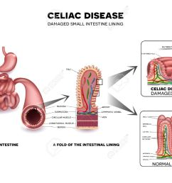 celiac disease detailed anatomy healthy intestinal villi and damaged unhealthy villi intestinal villi do [ 1300 x 1045 Pixel ]