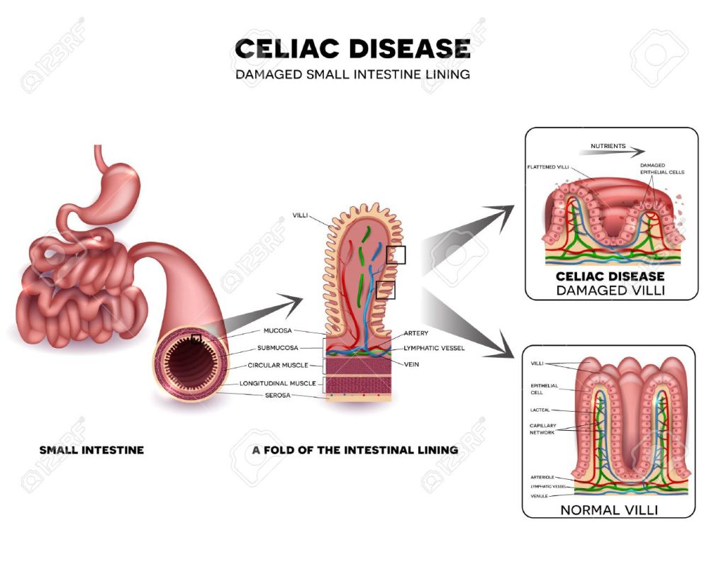medium resolution of celiac disease detailed anatomy healthy intestinal villi and damaged unhealthy villi intestinal villi do