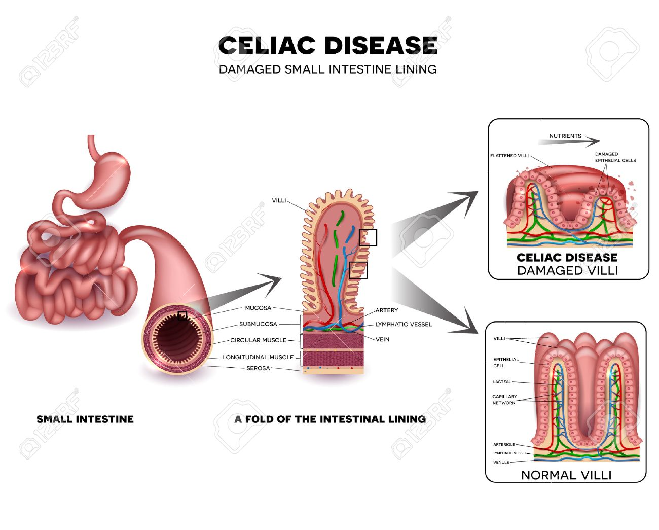 hight resolution of celiac disease detailed anatomy healthy intestinal villi and damaged unhealthy villi intestinal villi do