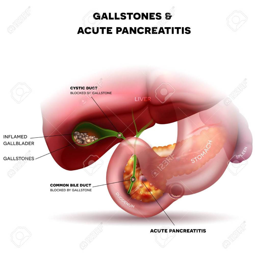 medium resolution of gallstones in the gallbladder and acute pancreatitis anatomy bright detailed illustration stock vector