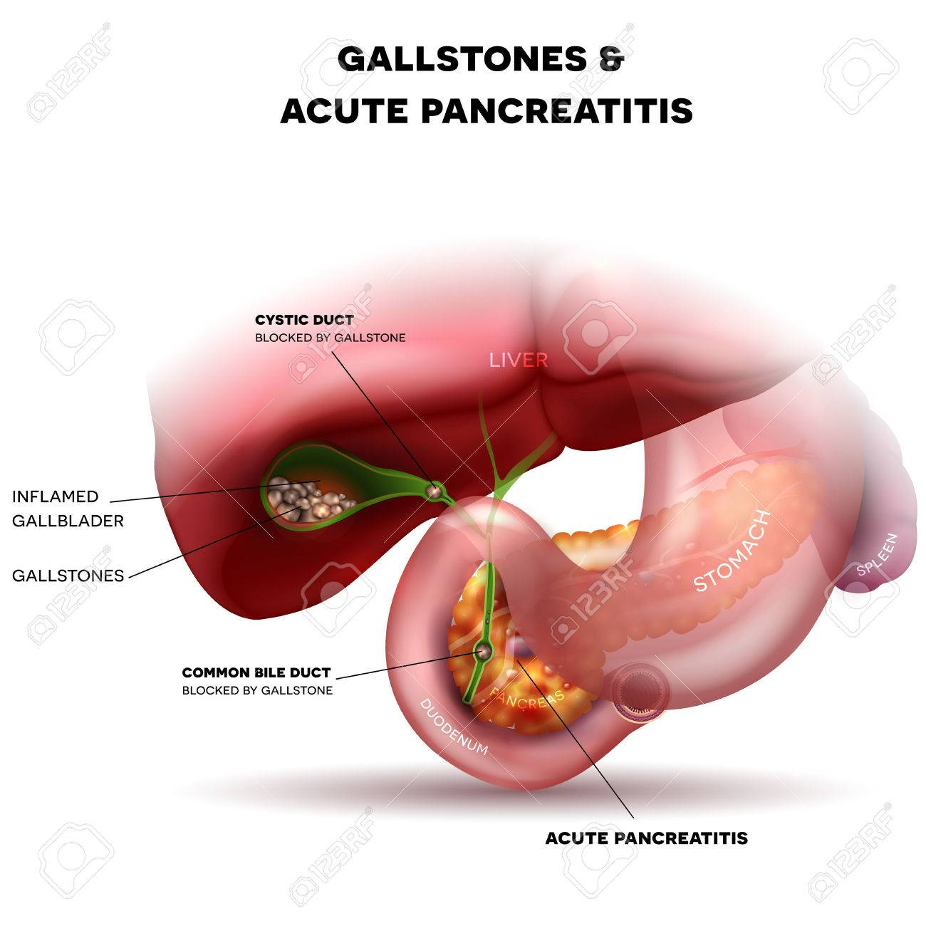 hight resolution of gallstones in the gallbladder and acute pancreatitis anatomy bright detailed illustration stock vector