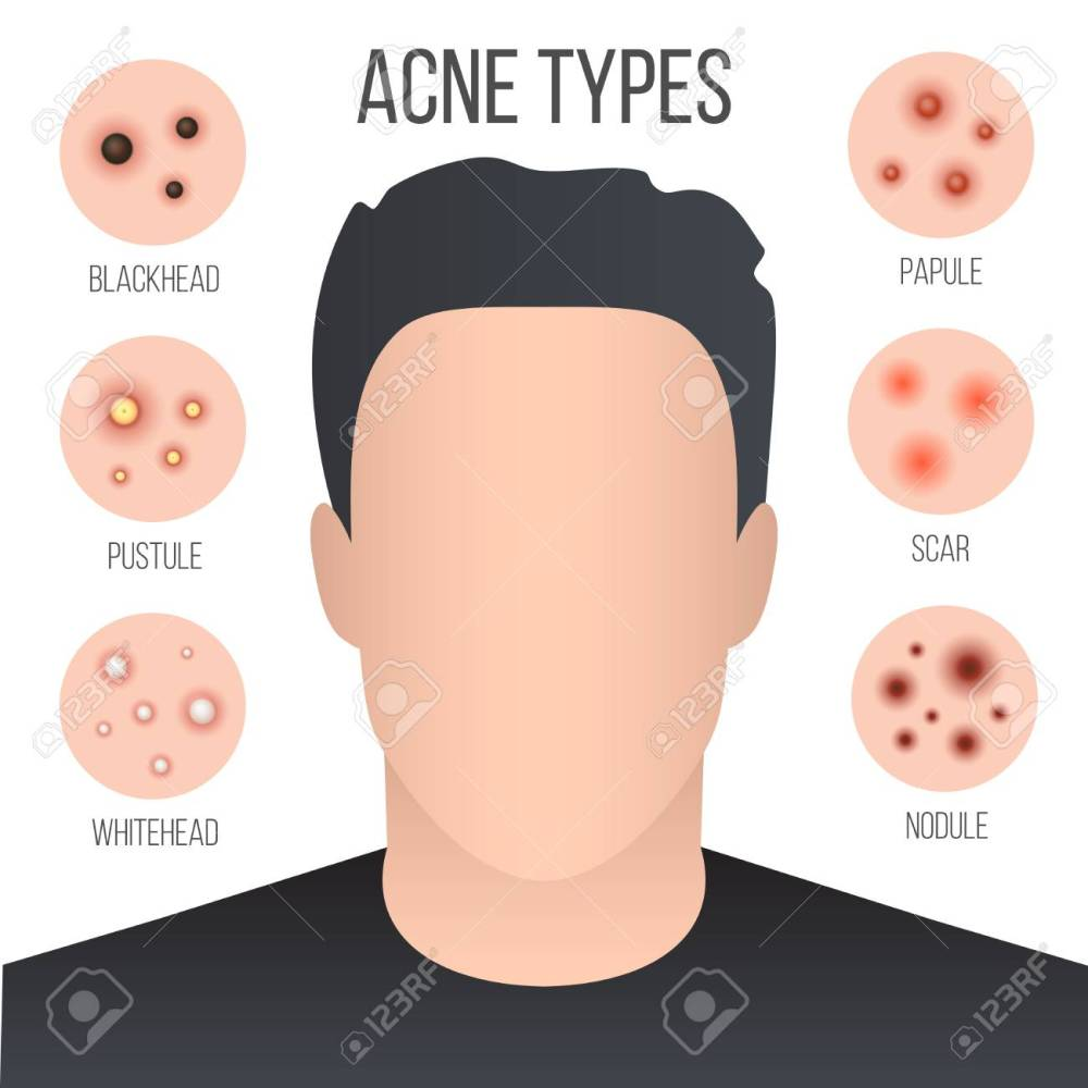 medium resolution of creative illustration types of acne pimples skin pores blackhead whitehead scar