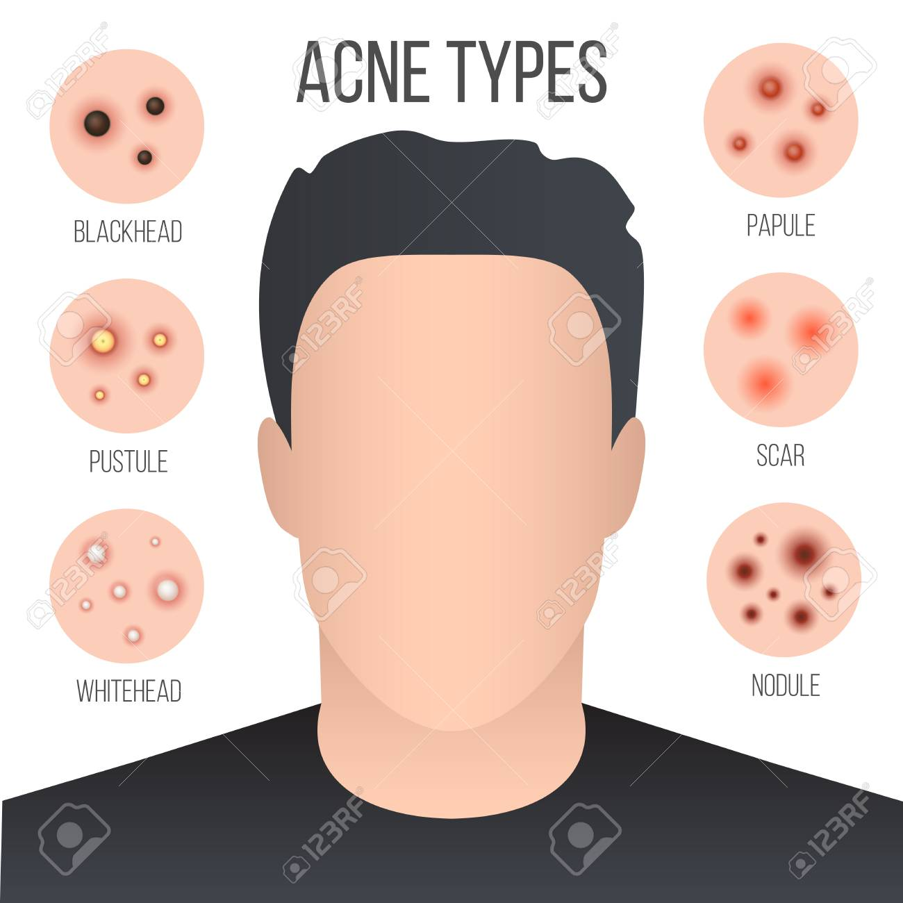 hight resolution of creative illustration types of acne pimples skin pores blackhead whitehead scar