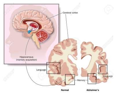 Tekening van de hersenen, waarin de hippocampus en gebieden van de hersenen van betrokkenheid bij de ziekte van Alzheimer Stockfoto - 13842536