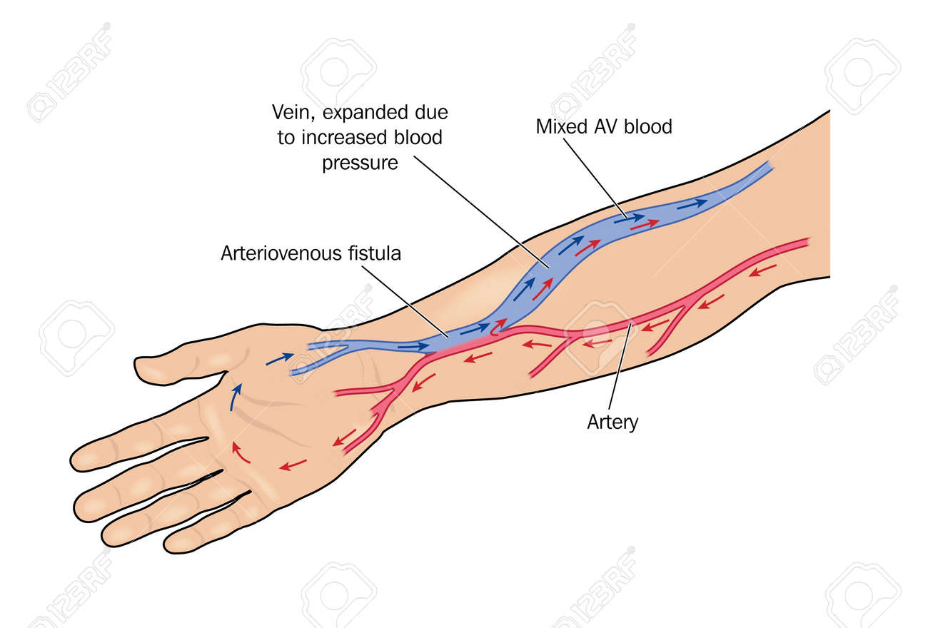 hight resolution of fistula formed between artery and vein in the arm to provide greater blood flow to a