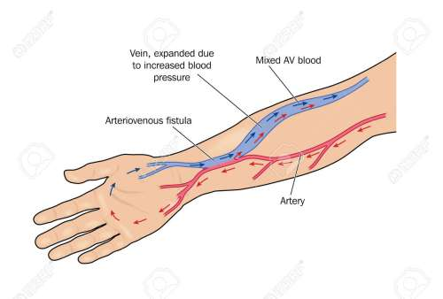 small resolution of fistula formed between artery and vein in the arm to provide greater blood flow to a