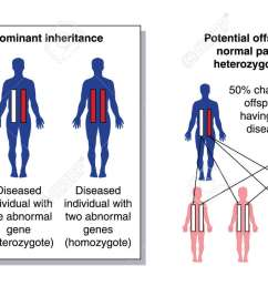 diagram to show the potential offspring from a parent with two normal genes and a heterozygous [ 1300 x 725 Pixel ]