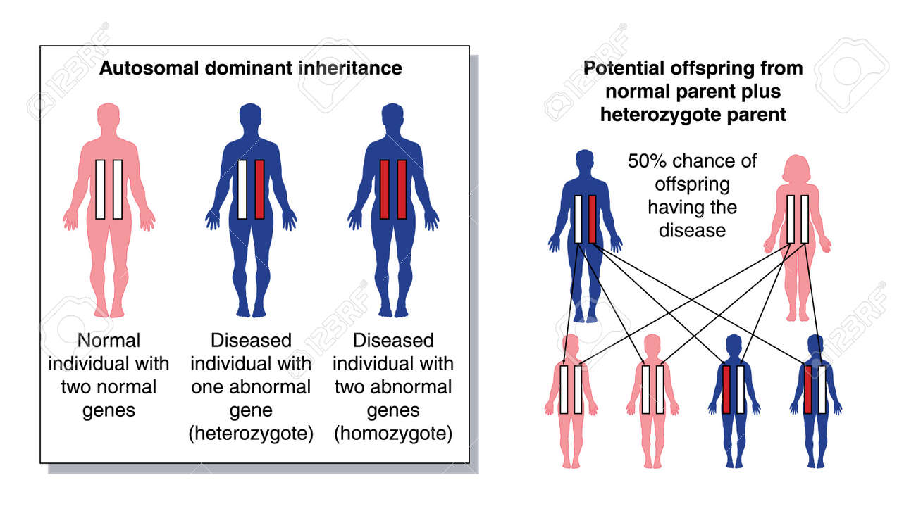 hight resolution of diagram to show the potential offspring from a parent with two normal genes and a heterozygous