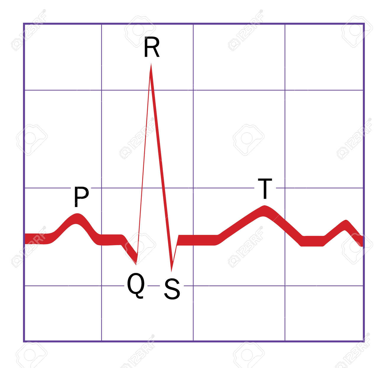 labeled ekg diagram wiring jvc car stereo a typical ideal stylized heart qrs ecg trace with the p q r