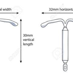 two versions of an intrauterine device iud showing the dimensions stock vector 93232821 [ 1300 x 689 Pixel ]