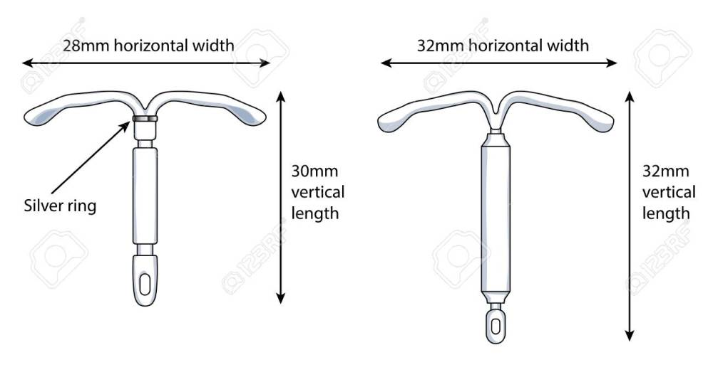 medium resolution of two versions of an intrauterine device iud showing the dimensions stock vector 93232821