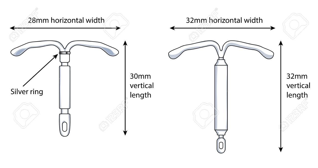 hight resolution of two versions of an intrauterine device iud showing the dimensions stock vector 93232821