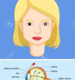 diagram showing eye with glaucoma illustration stock vector 59309540 [ 828 x 1300 Pixel ]