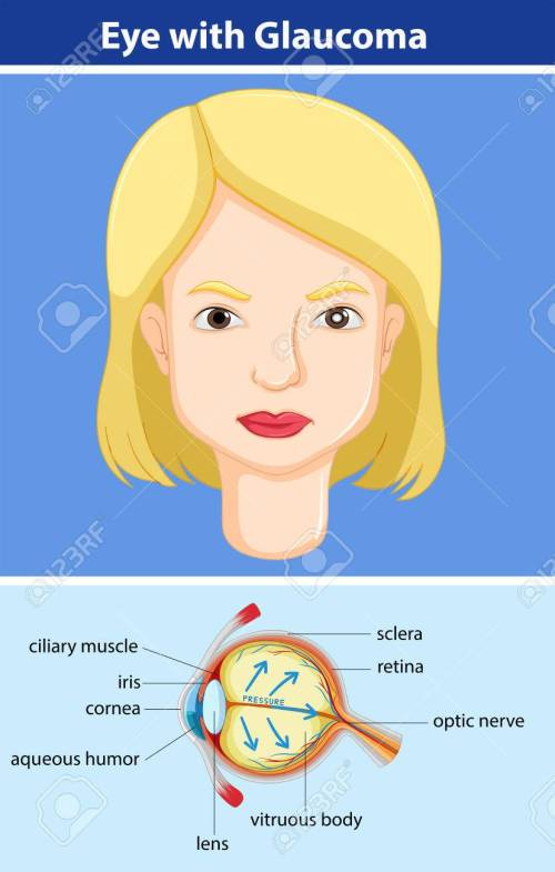small resolution of diagram showing eye with glaucoma illustration stock vector 59309540
