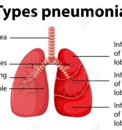 simple pneumonia diagram wiring diagram imp simple pneumonia diagram [ 1300 x 810 Pixel ]