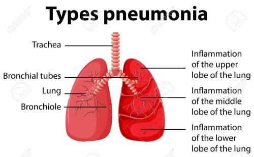 small resolution of simple pneumonia diagram wiring diagram imp simple pneumonia diagram