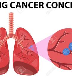 diagram of lung cancer concept illustration stock vector 59930529 [ 1300 x 916 Pixel ]