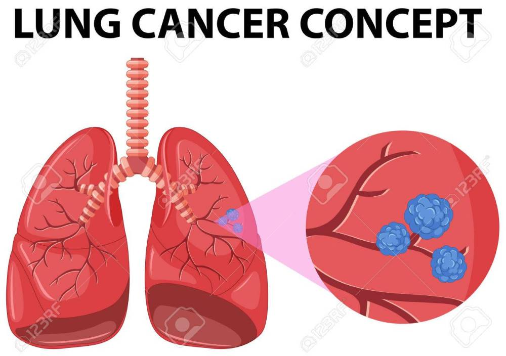 medium resolution of diagram of lung cancer concept illustration stock vector 59930529