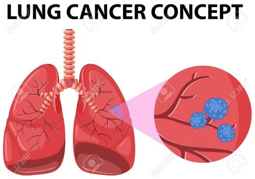small resolution of diagram of lung cancer concept illustration stock vector 59930529