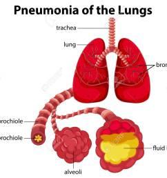 simple pneumonia diagram wiring diagram data val pneumonia patient diagram wiring diagram yer simple pneumonia diagram [ 1300 x 1050 Pixel ]