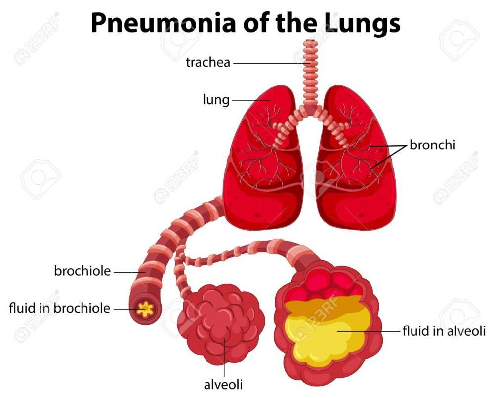 medium resolution of simple pneumonia diagram wiring diagram data val pneumonia patient diagram wiring diagram yer simple pneumonia diagram