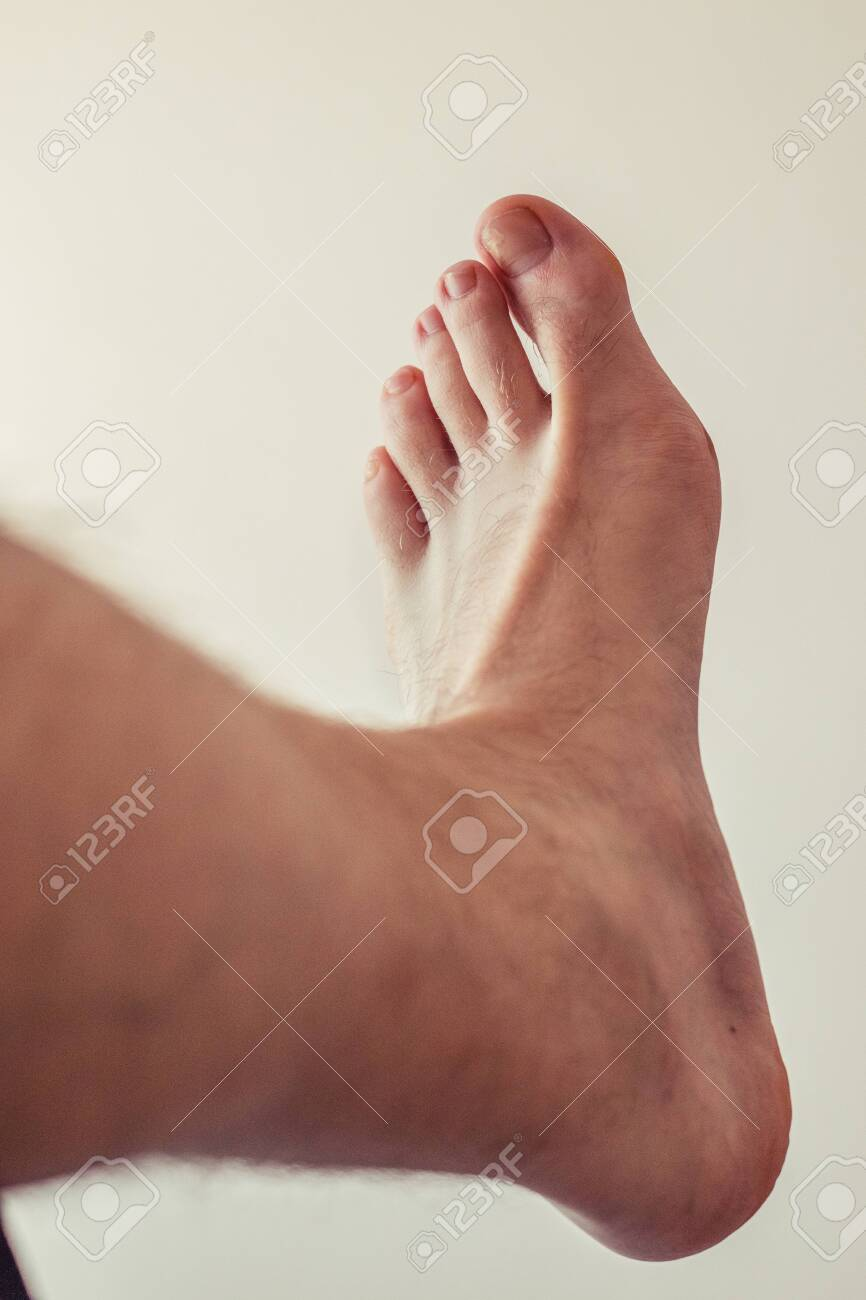 Ugly Toe Pics : Broken, Hairy, Stock, Photo,, Picture, Royalty, Image., Image, 148503483.