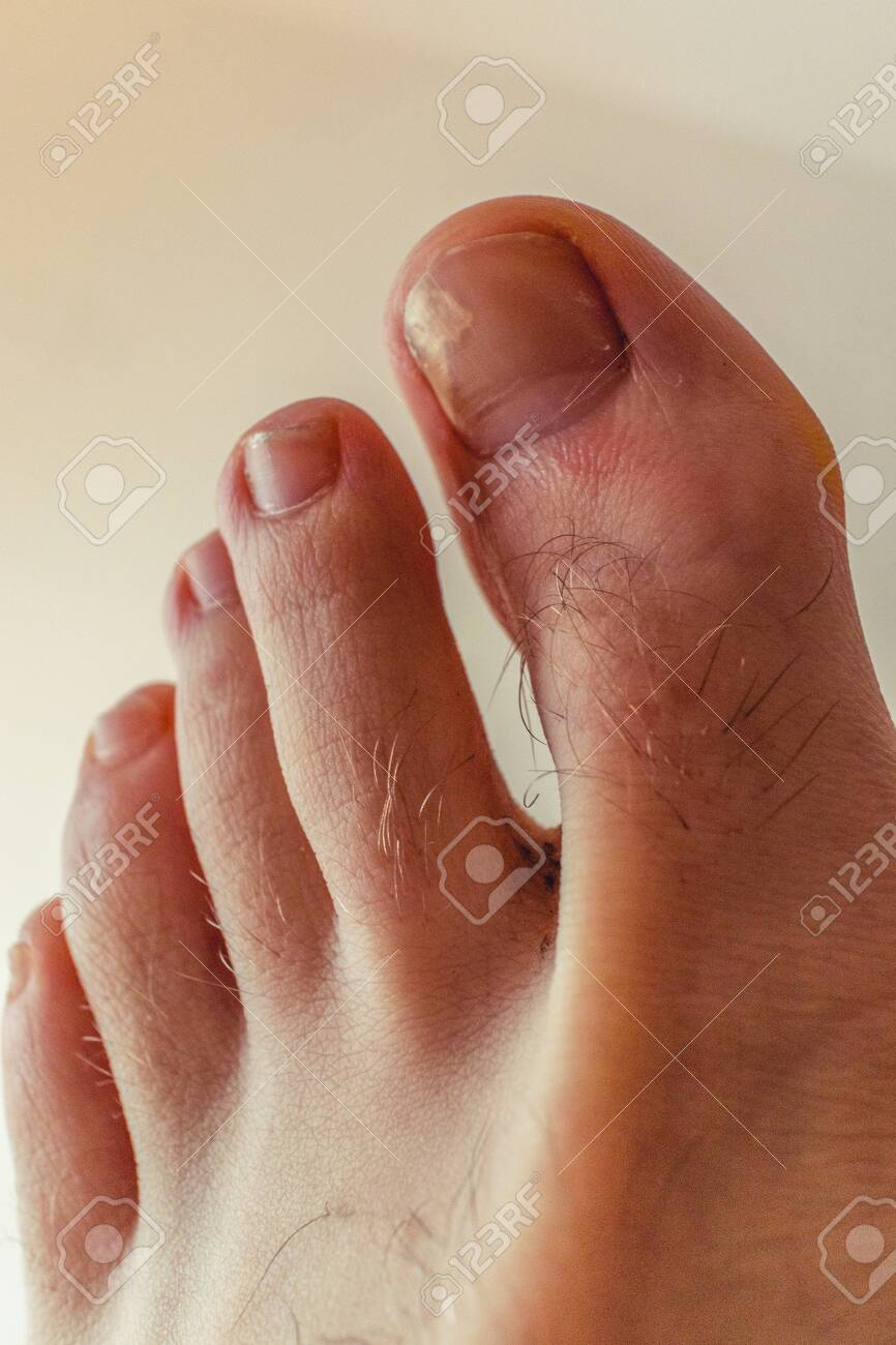 Ugly Toe Pics : Broken, Hairy, Stock, Photo,, Picture, Royalty, Image., Image, 148504070.