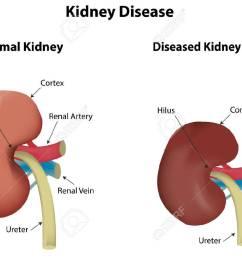 kidney disease stock vector 31812789 [ 1300 x 973 Pixel ]