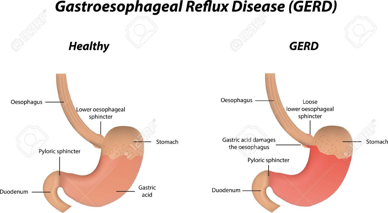 hight resolution of gastroesophageal reflux disease gerd stock vector 32265278