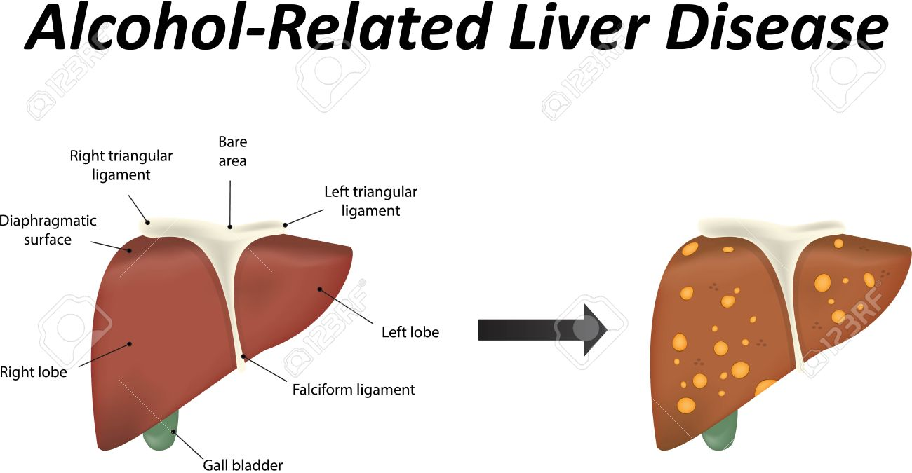 hight resolution of alcoholic liver disease stock vector 39095357