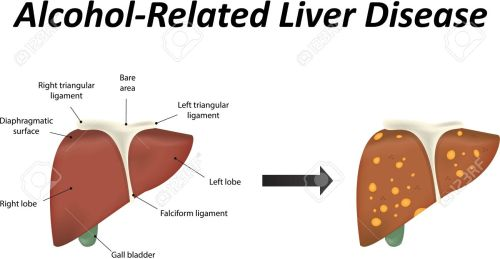small resolution of alcoholic liver disease stock vector 39095357