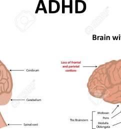 diagram of adhd wiring diagram third level diagram of adhd diagram of adhd [ 1300 x 645 Pixel ]