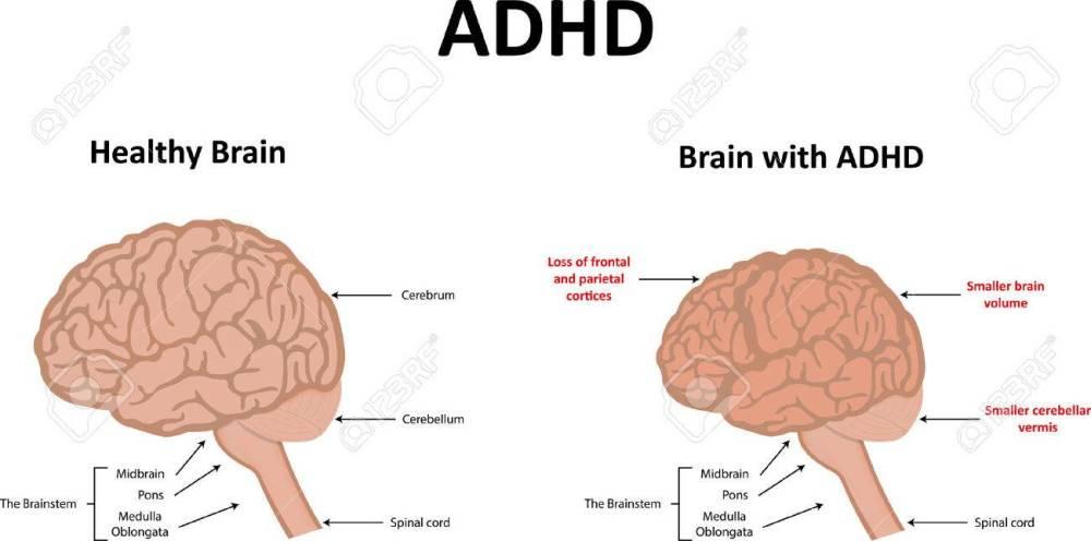 medium resolution of diagram of adhd wiring diagram third level diagram of adhd diagram of adhd
