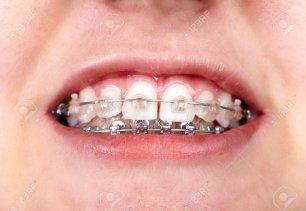 """Résultat de recherche d'images pour """"brackets orthodontie"""""""