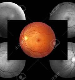 human eye anatomy retina optic disc artery and vein etc stock photo  [ 1300 x 866 Pixel ]