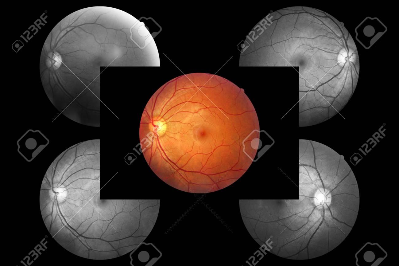 hight resolution of human eye anatomy retina optic disc artery and vein etc stock photo