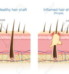 infection in the hair follicles illustration about medical diagram stock vector 81375988 [ 1300 x 899 Pixel ]
