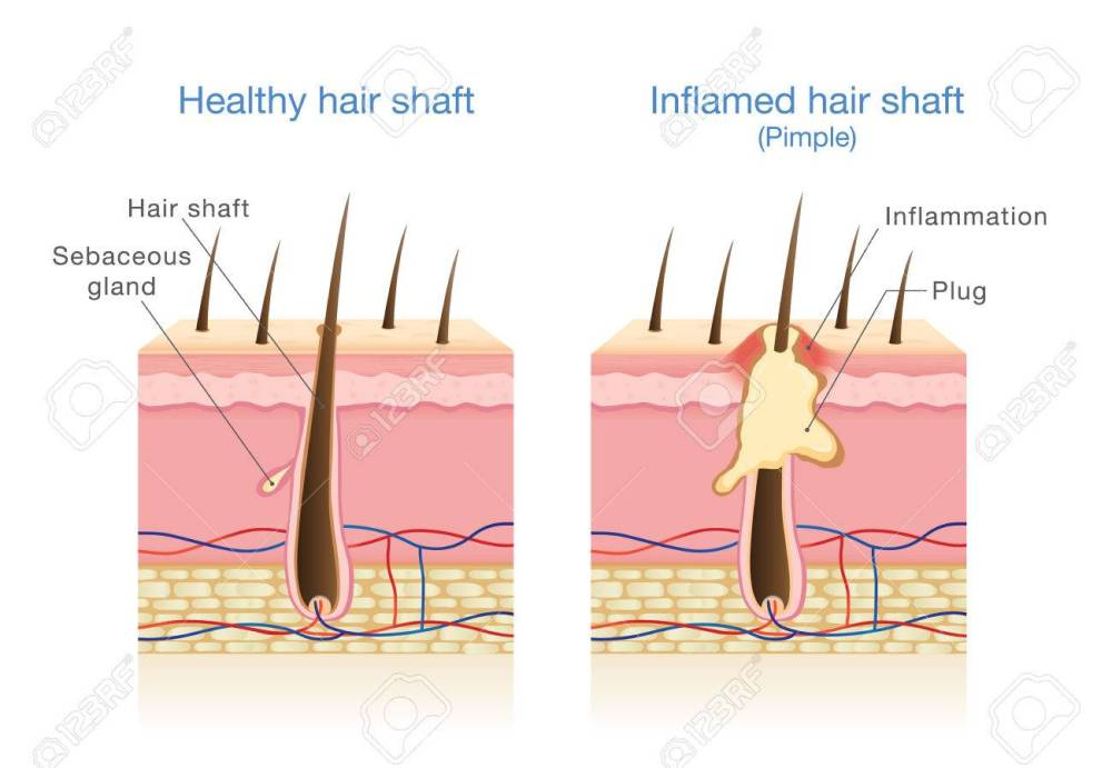 medium resolution of infection in the hair follicles illustration about medical diagram stock vector 81375988