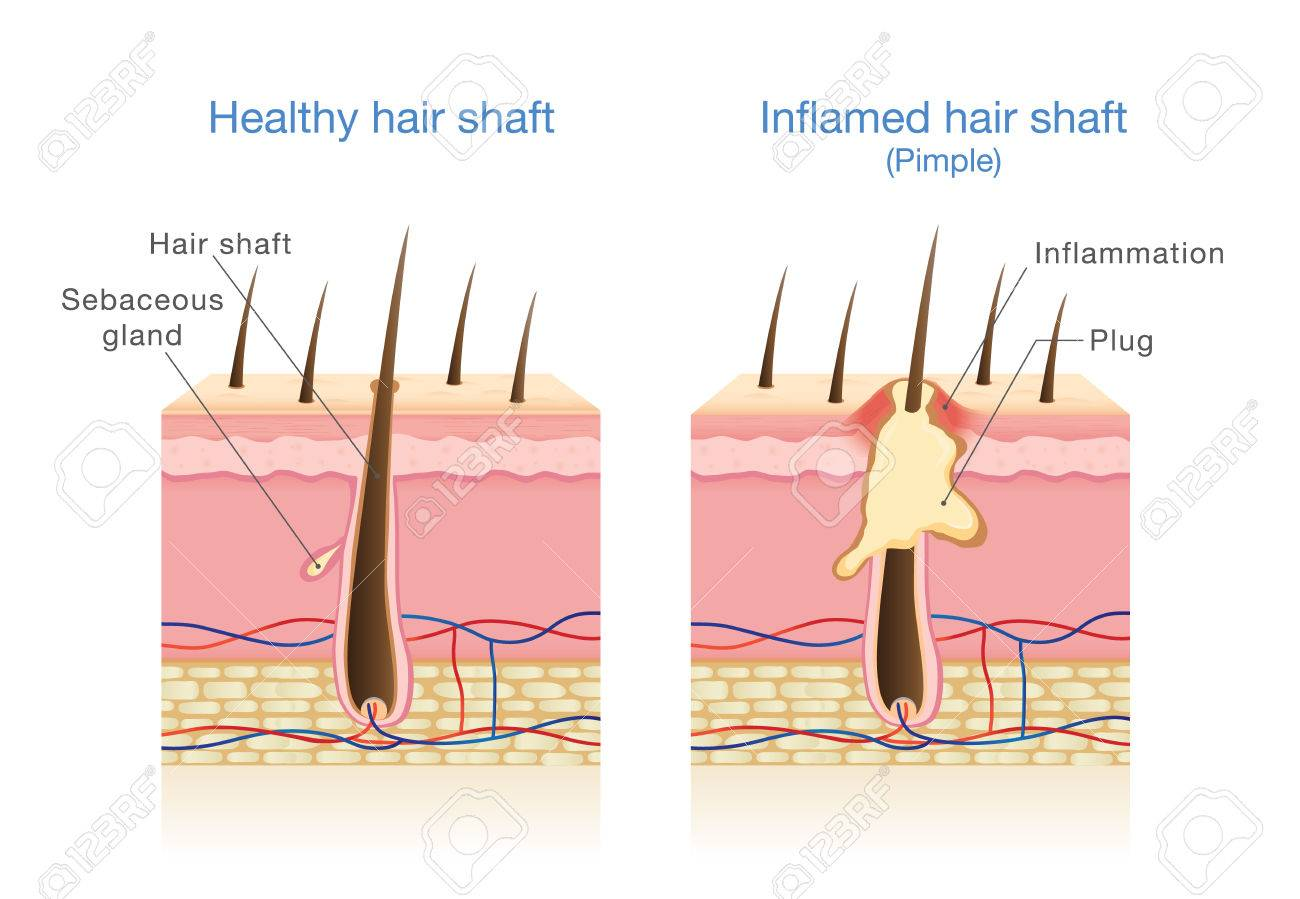 hight resolution of infection in the hair follicles illustration about medical diagram stock vector 81375988