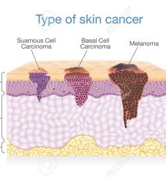 skin layer have 3 type of cancer in one illustration about medical diagram stock [ 1300 x 900 Pixel ]