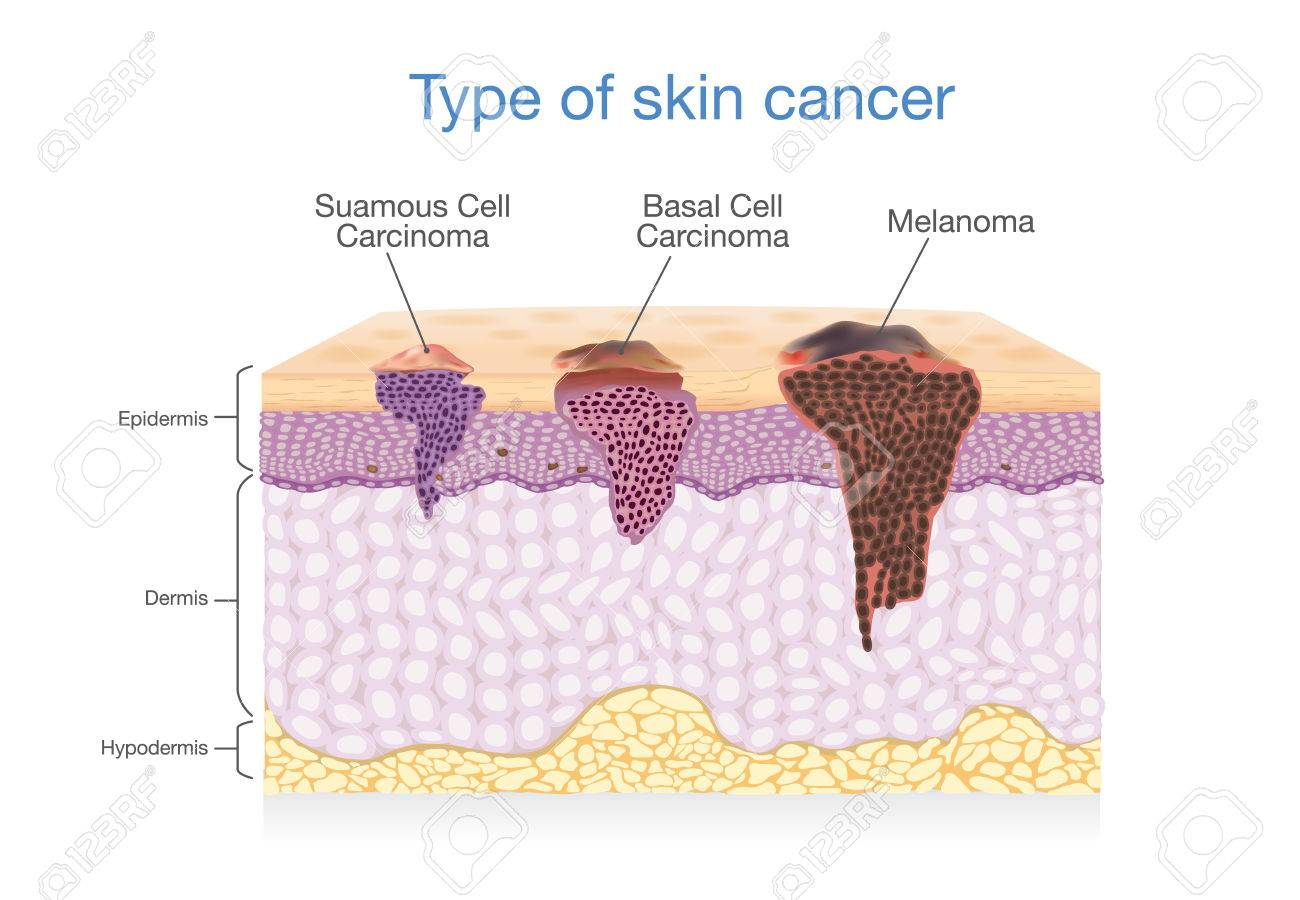 hight resolution of skin layer have 3 type of cancer in one illustration about medical diagram stock