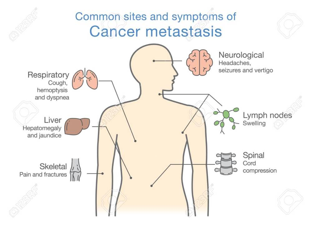 medium resolution of most common sites and symptoms of cancer metastasis illustration about medical diagram of deadly diseases
