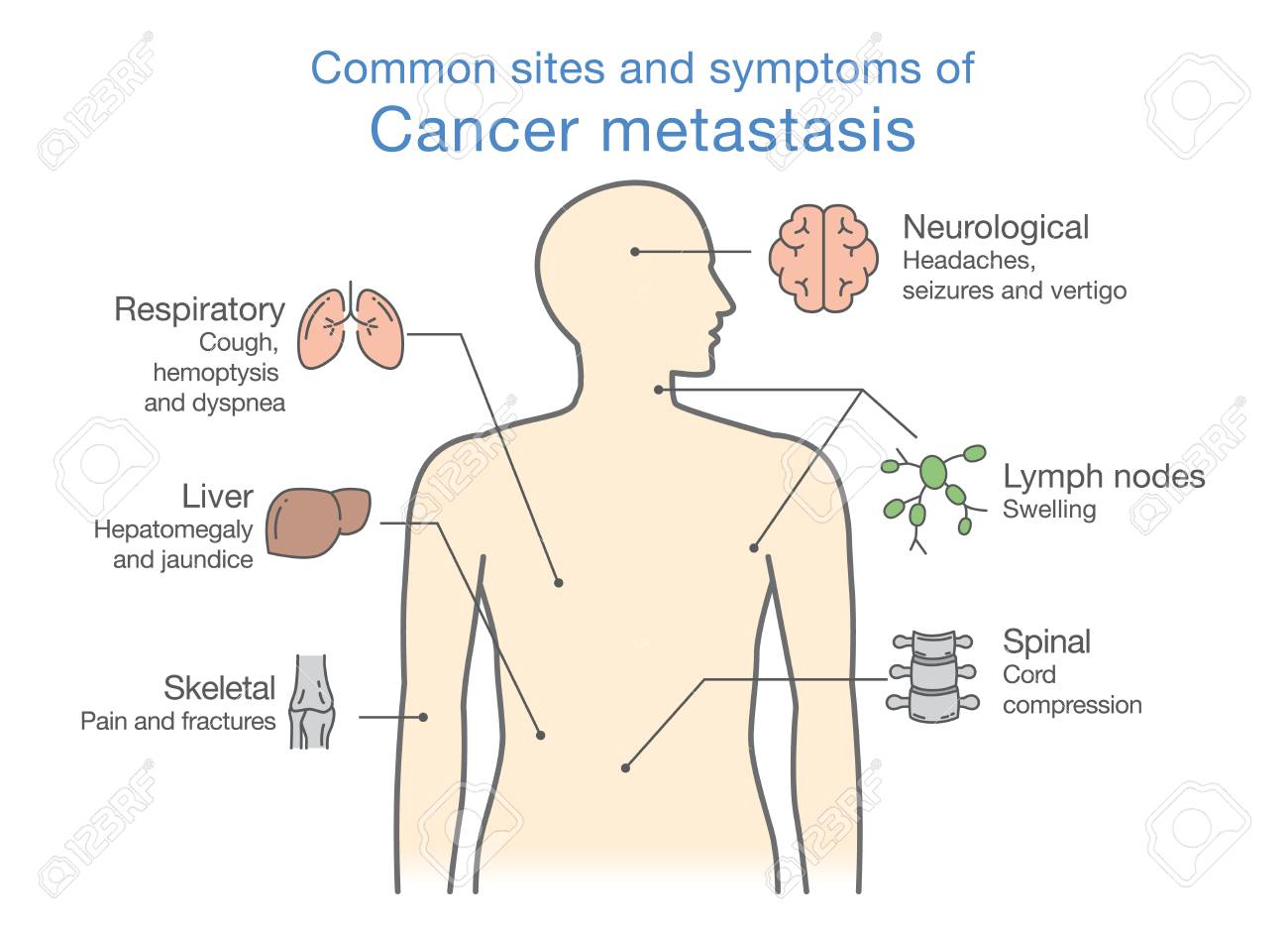 hight resolution of most common sites and symptoms of cancer metastasis illustration about medical diagram of deadly diseases