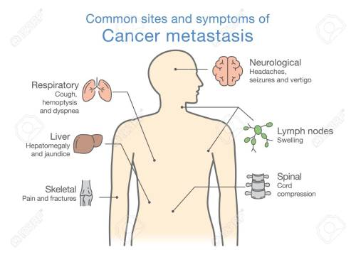 small resolution of most common sites and symptoms of cancer metastasis illustration about medical diagram of deadly diseases